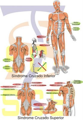 sindrome-cruzado-superior